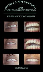 aesthetic dentistry and laminates