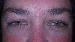 Christina's Eyes Before