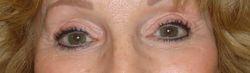 After Eyeliner Procedure