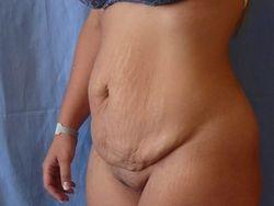 vor der Operation