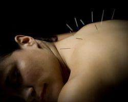 Patient - Upper Back