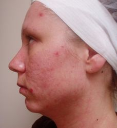 Fractional CO2 Laser Therapies - Before