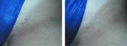 Laser Hair Removal - female tanned Bikini line/ Depilação Laser - virilha feminina bronzeada