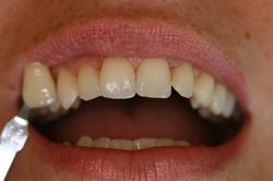Before Home tooth whitening Patient 1