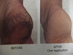 callus remover treatment