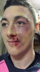Beat up face