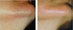 Laser Hair Removal female face/ Depilação Laser Rosto feminino