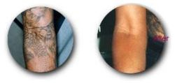 Before & After pics Laser Tattoo Removal/ Fotos antes e depois Laser Tattoo Removal