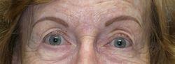 Eyebrows Healed