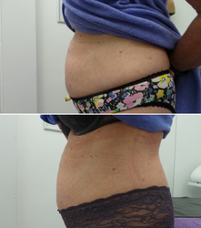 Tummy Before & 1 week After 1st Treatment