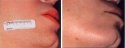 Laser Hair Removal female face after 5 Lightsheer Diode treatments/ Depilação Laser Rosto feminino depois de 5 sessões com laser de díodos Lightsheer