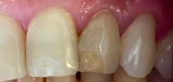 Foto del dente pre-trattamento