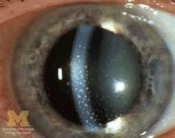 Sarcoidosis Granulomas in the Eye