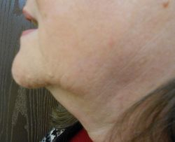 RF Skin Tightening Treatment - After