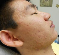 Fractional CO2 Laser Acne Thereapies - Before