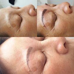 Technique de poil à poil