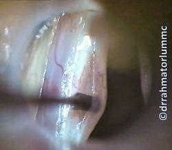 Left Vocal Fold Cyst Medial Cordotomy Flap Raising