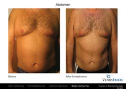 Removes fat and tightens abdomenal area