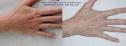 Anti-Ageing Peeling Results/ Resultados de Peelings Anti-Ageing