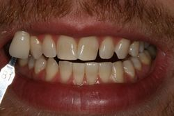 After Home Tooth Whitening Patient 2