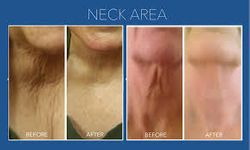 Neck Firm Treatment