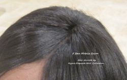 Weaves for Hair Loss