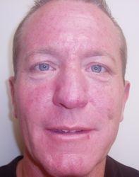 IPL Rosacea Treatment - Before