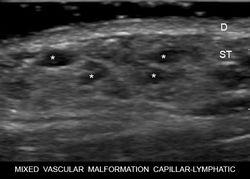 MIXED VASCULAR MALFORMATION ( CAPILLARY-LYMPHATIC)