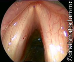 Vocal Fold Lesions & Punctate Haemorrhage 0 Degree Endoscopy