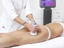 RADIOFREQUENCE: traitement du relâchement cutané: 8 séances espacées d'une semaine