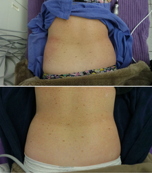 Hips Before & 1 week After 1st Treatment