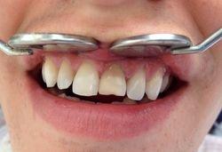 Before: Dark natural tooth
