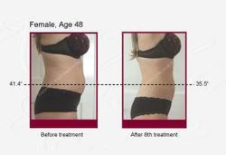 Clinical Photos taken before and after treatments with the Diode Laser for fat removal, Celulite, Body Contouring