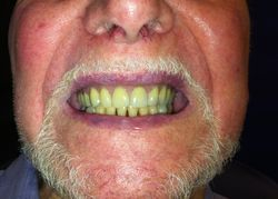 Implant Denture in Mouth