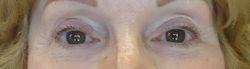 Before Eyeliner Procedure