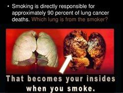 Stop smoking Consultant