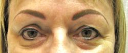 Eyeliner And Brow After