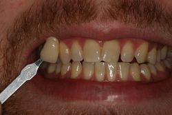 Before Home Tooth Whitening Patient 2