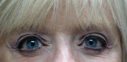 Eyeliner Healed
