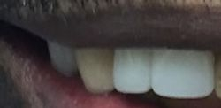 Beautiful Teeth in 40 Minutes