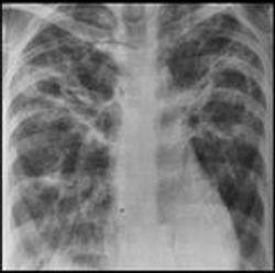Pulmonary Sarcoidosis
