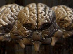 Brains - not mine