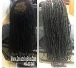 BRAIDS BY BEE REATTACHS DREADS THAT FALLS OUT THAT CREATSES BALD SPOTS