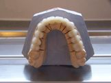 Laboratory cast Porcelain Crowns