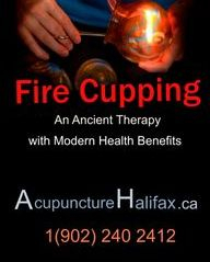 Chinese Fire Cupping in Halifax by Anne-Marie Sterckx, R.Ac. An Ancient Therapy with Modern Health Benefits