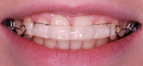 Inman Aligner worn by patient