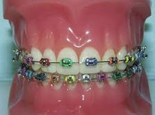 Metal Child braces