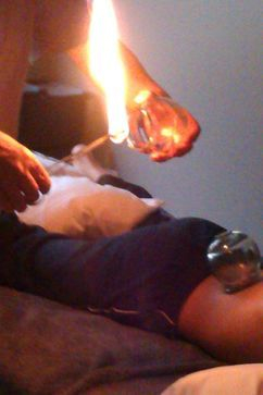 fire cupping is safe and effective