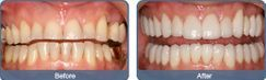 Full mouth rehabilaitations