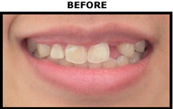 Dental Implant Before - Oral Surgery